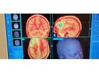 Metodica innovativa per i tumori al cervello messa a punto dalle equipe del Santo Stefano e di Careggi
