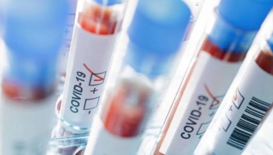 Raddoppiano da ieri i casi di positività al coronavirus a Prato: oggi sono 211. C'è anche un decesso